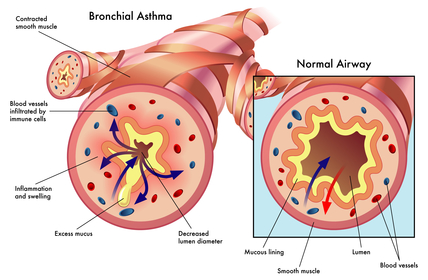 asthma bronchal normal vs inflamed