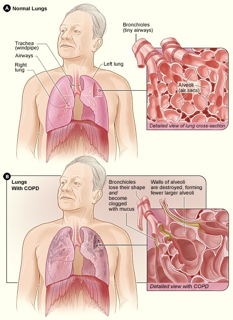 Things You May Not Know About COPD